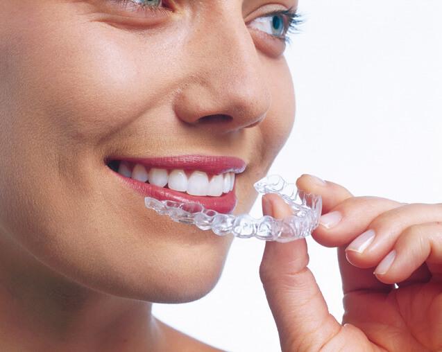 Invisalign - A láthatatlan fogszabályozó
