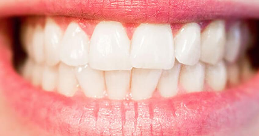 After-whitening denture