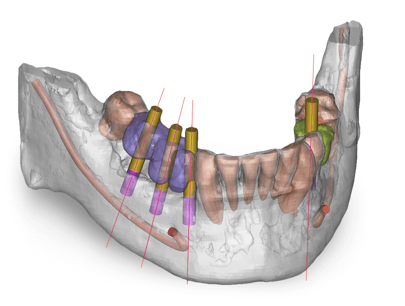 3D Dental CT
