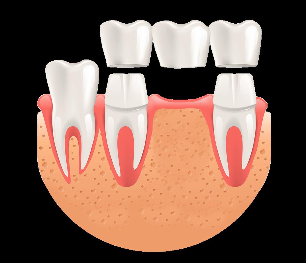 Zahnbrücke installieren