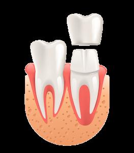 Die ästhetische Zahnmedizin beinhaltet hochwertige Kronenversorgungen