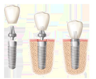 Schema Zahnimplantat