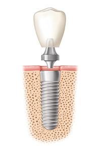 Interaktiver Ablauf Zahnimplantat 2 von 3