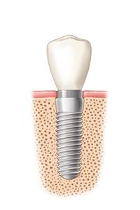 Interaktiver Ablauf Zahnimplantat 3 von 3